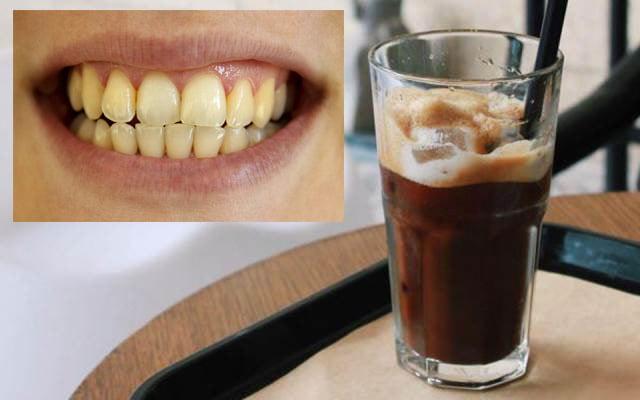 Cà phê làm vàng răng của bạn, nên sử dụng ống hút khi uống cà phê nhé!